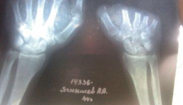 На операцию по рентлантации пальцев кистей рук.
