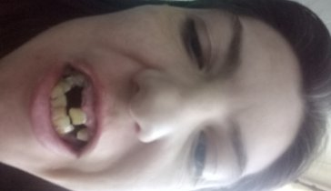 Марина зубы